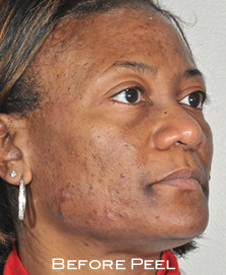 Black woman with acne found help